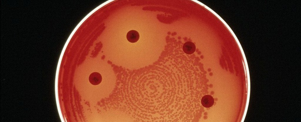 A superbug resistant to every available antibiotic has killed a woman in the US