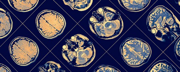 Schizophrenia May Start In Womb >> Schizophrenia Begins During Pregnancy New Evidence Suggests