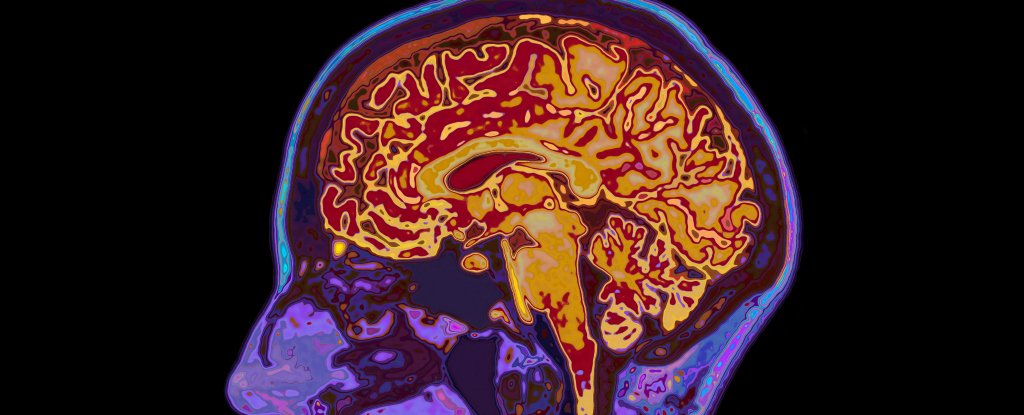 Scientists Have Identified The Chemical That Suppresses Unwanted Thoughts in The Brain