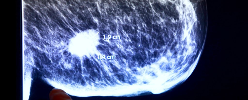 "Combination of Drugs ""Dramatically"" Shrinks Breast Cancer in Just 11 Days"