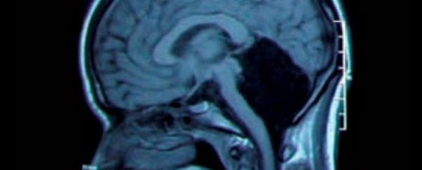 This woman lived 24 years without knowing she was missing her entire cerebellum