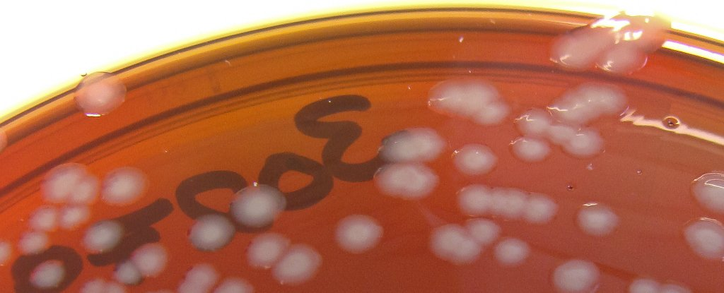 Gonorrhoea Might Soon Be Resistant to All Antibiotics