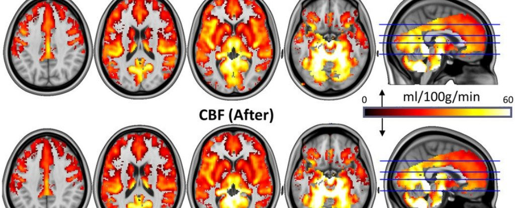 """Magic Mushrooms Found to Be """"Resetting"""" Brain Circuits in Depressed People"""