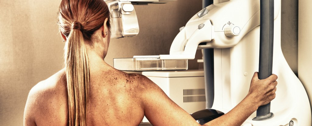 AI can analyse mammogram results 30 times faster than doctors, and with 99% accuracy