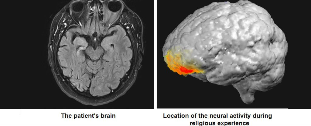 Neuroscientists Have Recorded The Brain Activity of a Man at The Exact Moment He 'Saw God'