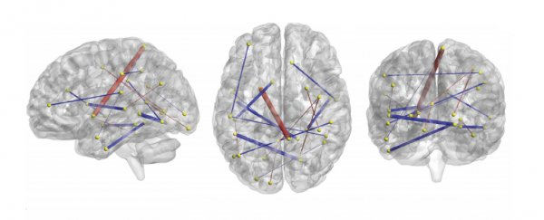 Autism As Disorder Of Prediction In >> A Single Brain Scan Has Been Used To Accurately Predict Autism At