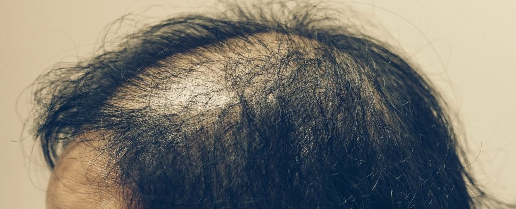 Scientists Have Developed a Baldness Treatment That Helps Grow New Follicles