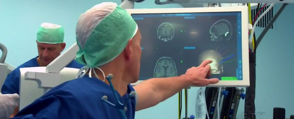 This World-First Brain Implant Is Letting a 'Locked-In' Woman Communicate