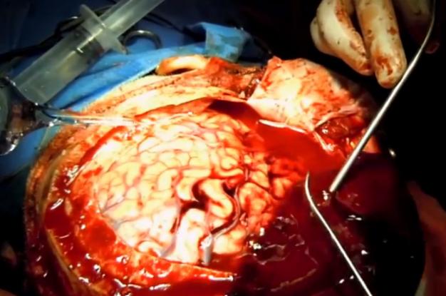 brain surgery - photo #6