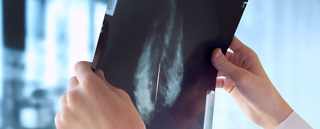 Breast Cancer Growth Is Halted by Osteoporosis Drug, Study Finds