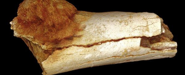 The earliest case of cancer has been found in a 1.7 million-year-old bone