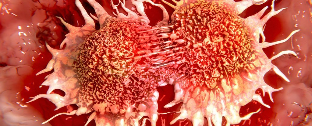 We Now Have The Most Precise Timeline Ever of a Cancer Spreading in a Patient's Body