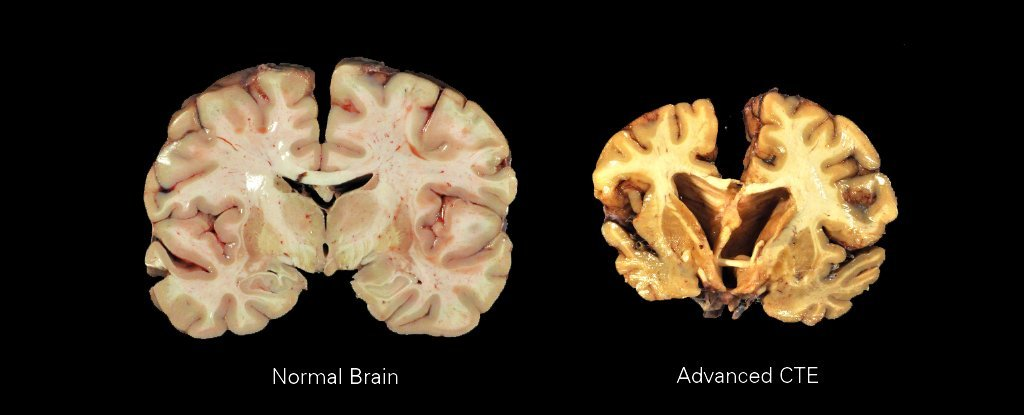 We Can Finally Detect Concussive Brain Trauma in Living Patients