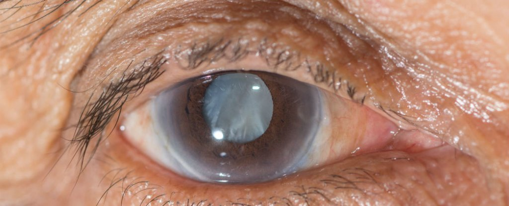 what is cataract eye surgery