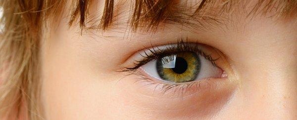 eye q autism
