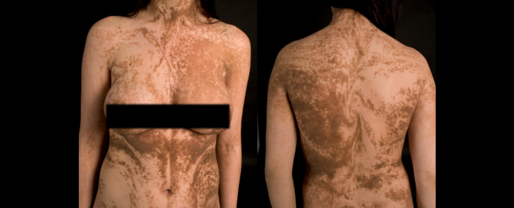 This rare disease reveals the patterns of our skin cell growth publicscrutiny Choice Image