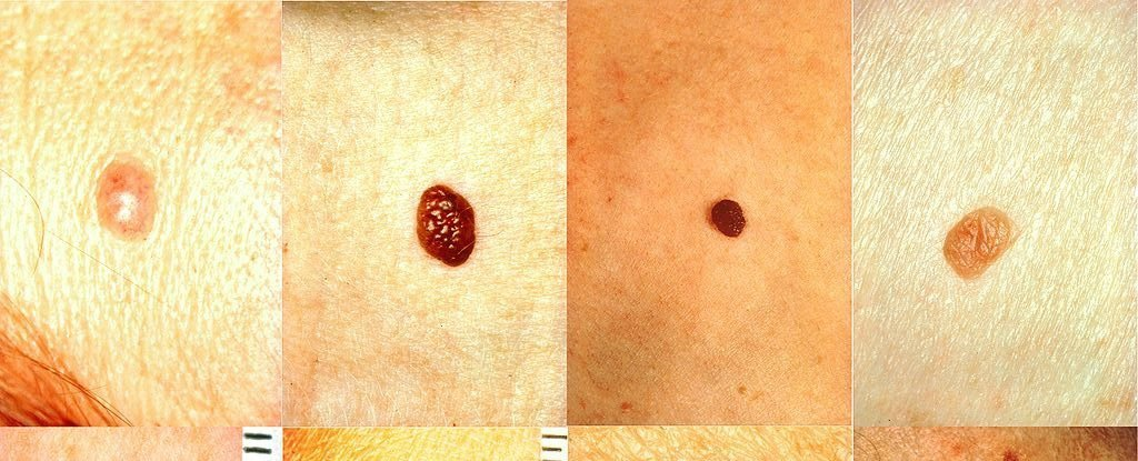 5 Tips For Checking Your Moles For Skin Cancer