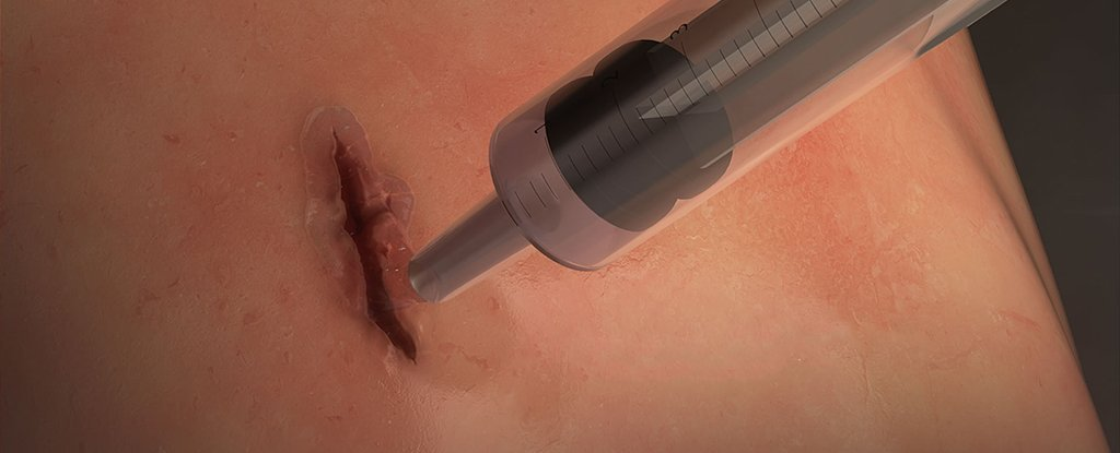 Scientists Have Developed Surgical Glue That Seals Wounds in 60 Seconds