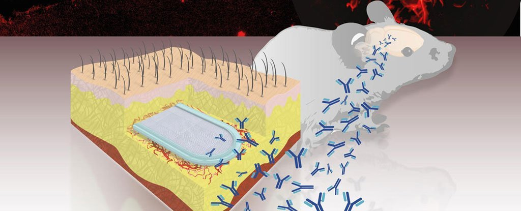 This New Capsule Implant Releases Antibodies to Fight Alzheimer's Disease
