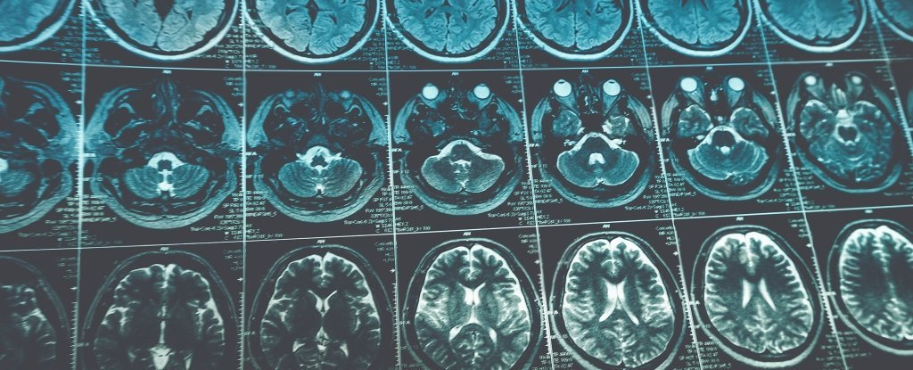 This Incredible Virus Attacks Brain Cancer And Actually Boosts Our Immune System