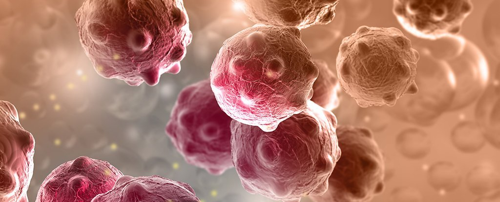 Image result for cancer diseases