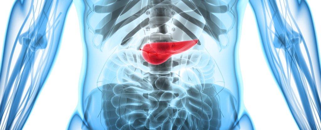 A Bioengineered 'Pancreas' Has Ended One Diabetic's Need For Insulin