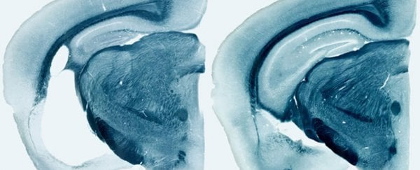 We just found a gene that could radically change our thinking on Alzheimer's