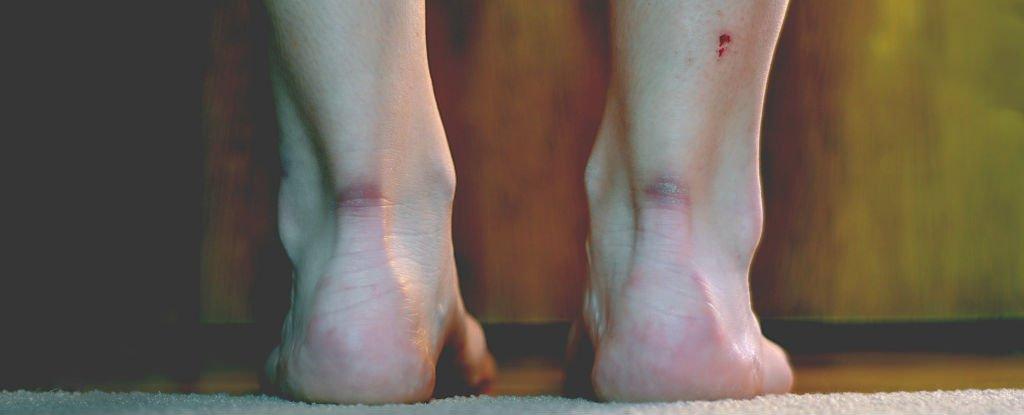 scar-ankles_1024.jpg