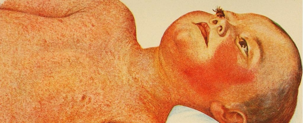 The Once-Deadly Scarlet Fever Is Making a Weird Comeback ... Scarlet Fever