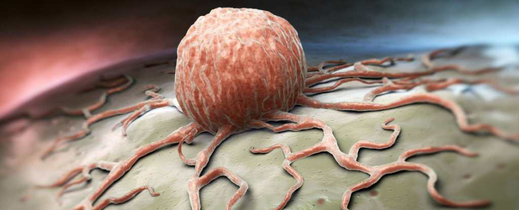 Activating A Single Gene Reverses Colon Cancer Growth In Mice In Just 4 Days