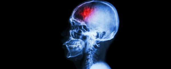 researchers find gut bacteria can trigger brain lesions that lead to